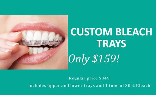 Custom Bleach Trays
